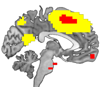 A fMRI marker may predict the outcome of electroconvulsive therapy in severe and treatment-resistant depression