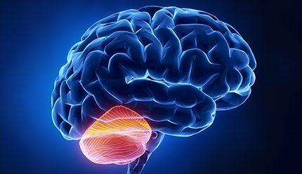 Cerebellum klein